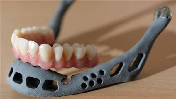 first-3d-printed-jaw